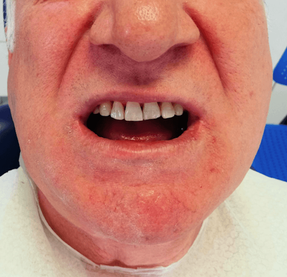 Kaç yıllık sorunum çözüldü, dört implantla alt çenem tamamen yenilendi