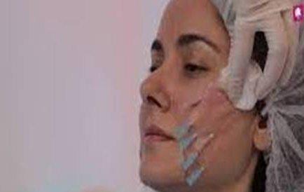 iple ameliyatsız yüz germe