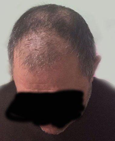 İstanbul'da saç ekimi...