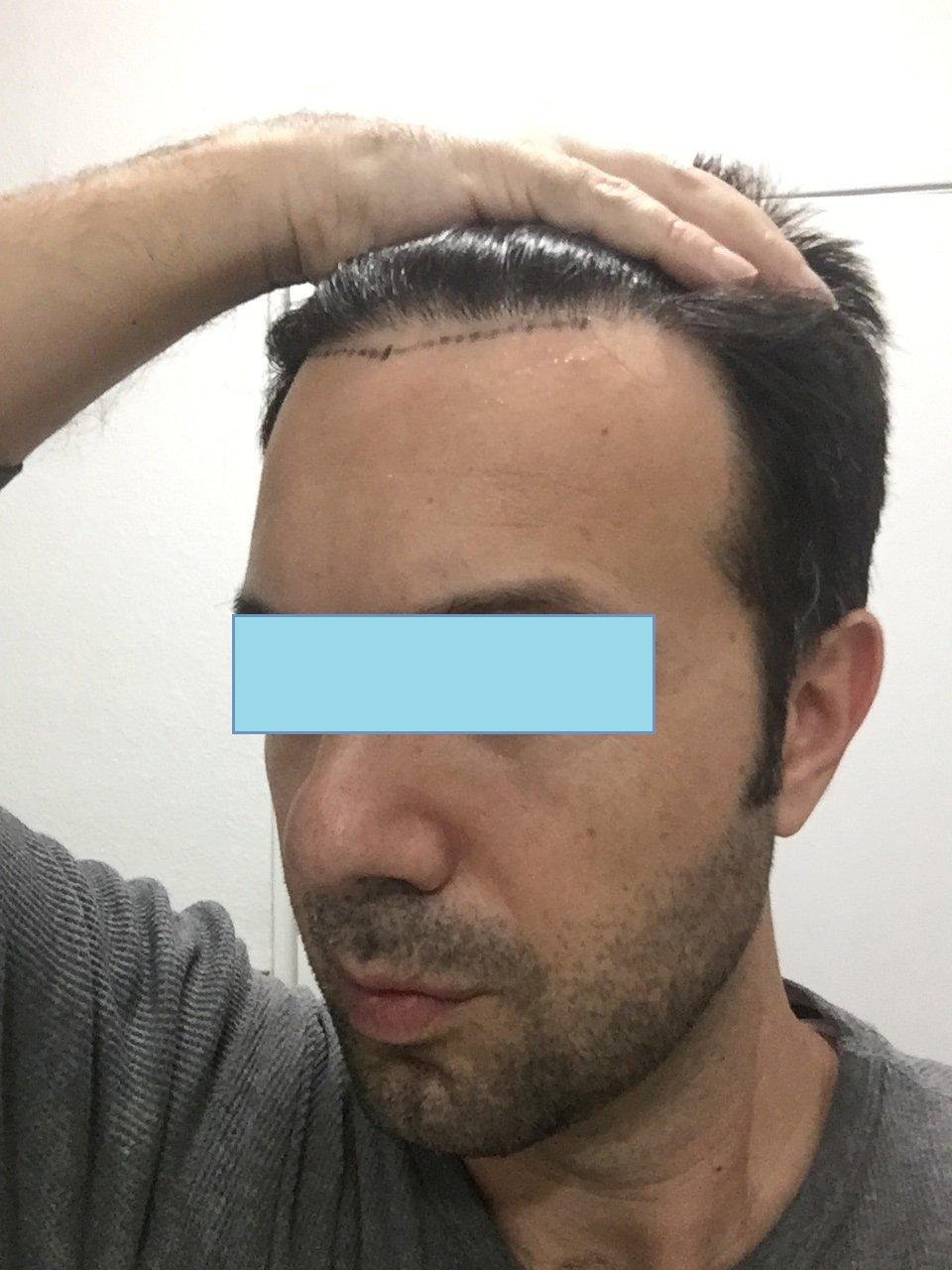 41 yaşındayım, ön çizgim için 1330 Graft Saç Ekimi deneyimim