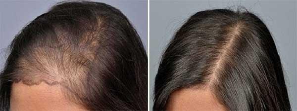 kadın saç ekimi öncesi sonrası fotoğrafları