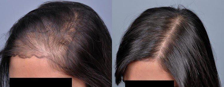 Kadınlarda saç ekimi öncesi sonrası fotoğrafları