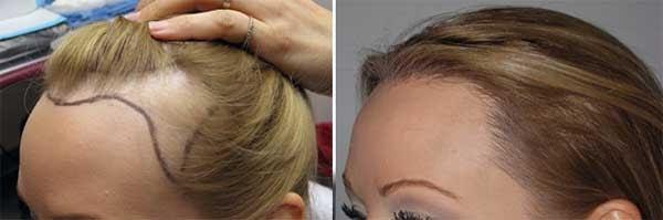 Kadınlarda saç ekimi öncesi hazırlık