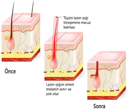 Lazer epilasyon nasıl çalışır?
