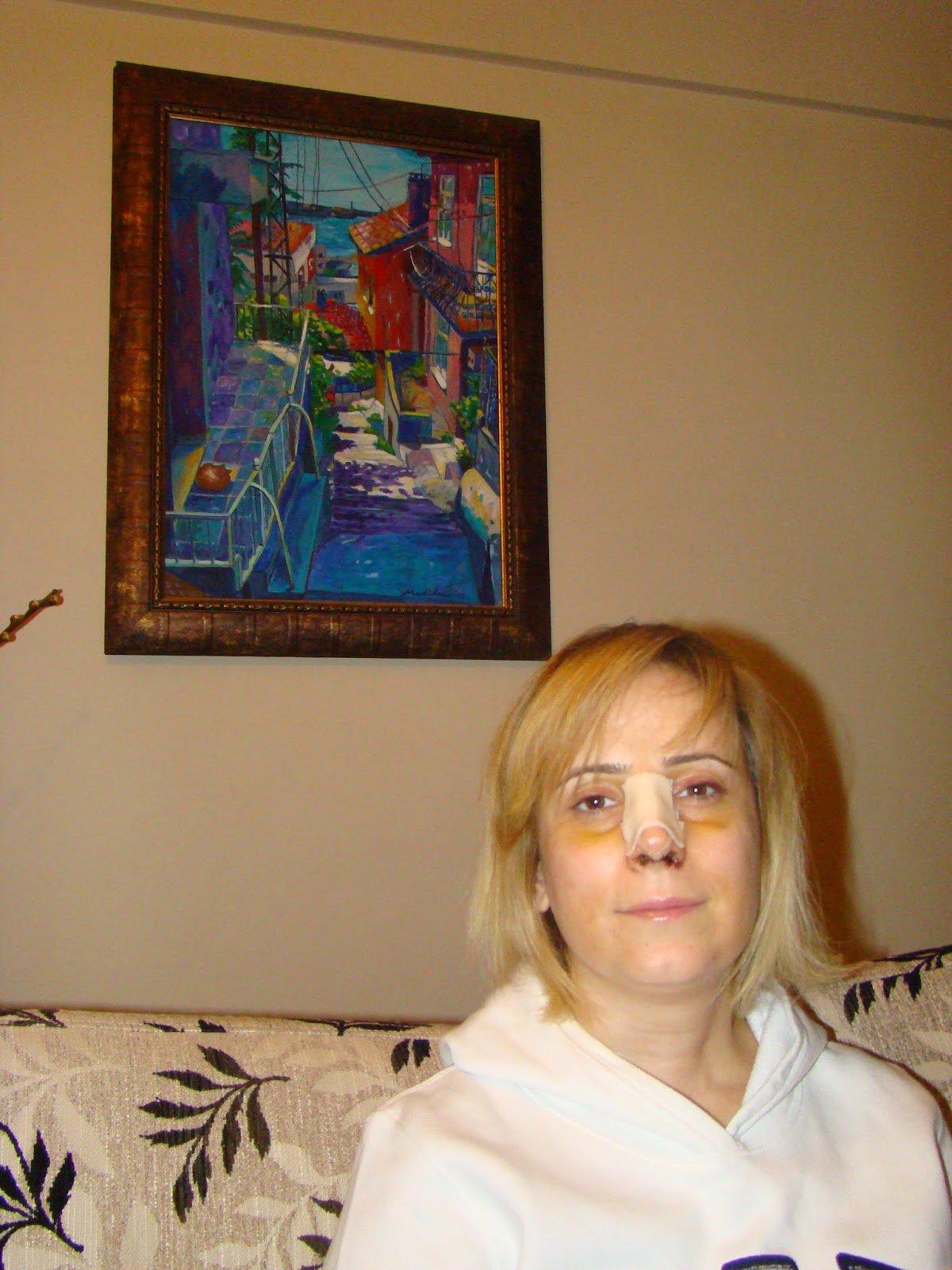 38 yaşında kemerli burun sebebi ile olduğum burun ameliyatım