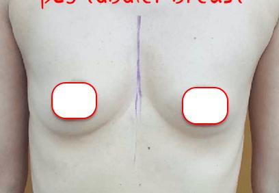 Göğüslerimin şeklinden hiç memnun değildim