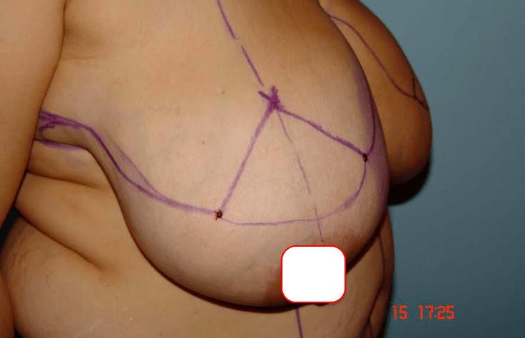 Büyük göğüslerim yüzünden çok rahatsızdım göğüs küçültme operasyonu geçirdim