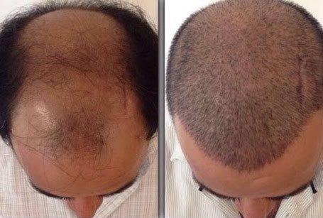 önce sonra saç ekimi