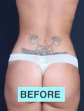 BBL + Liposuction + Bichectomy