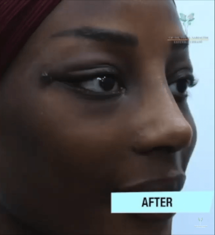 Rhinoplasty and Cat Eye Lifting