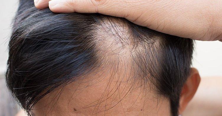 saç ekimi öncesi