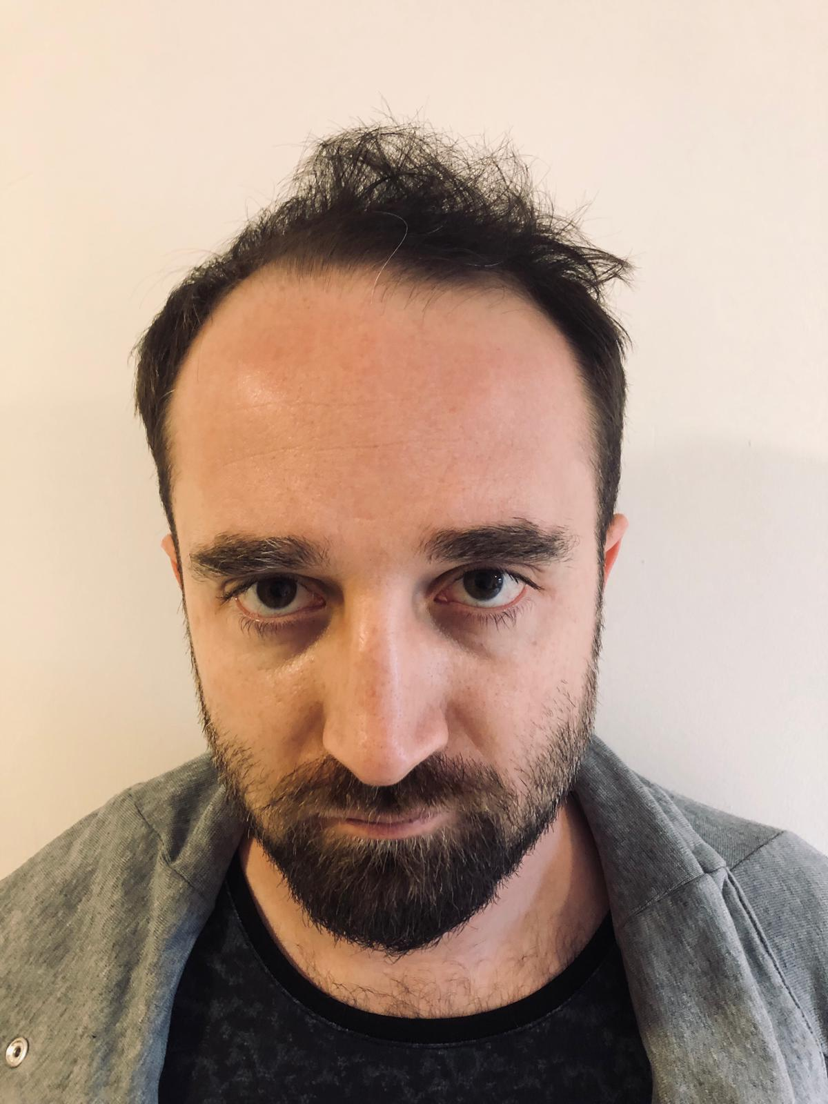 Saç ekimi için doktorum Çağatay Falcıoğlu'nu tercih ettim işte sonucum