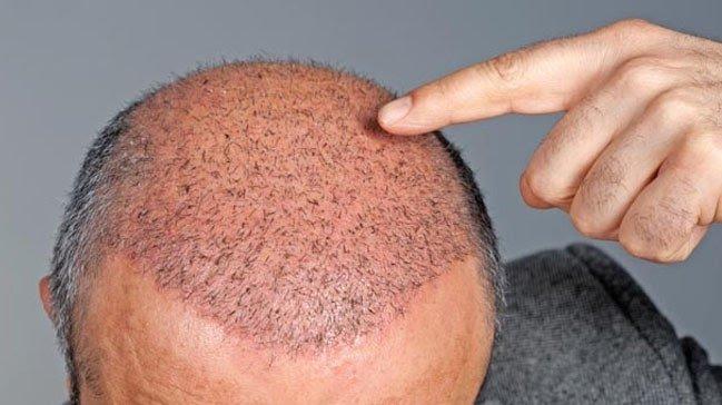 saç ekimi sonrası ilk saçlar