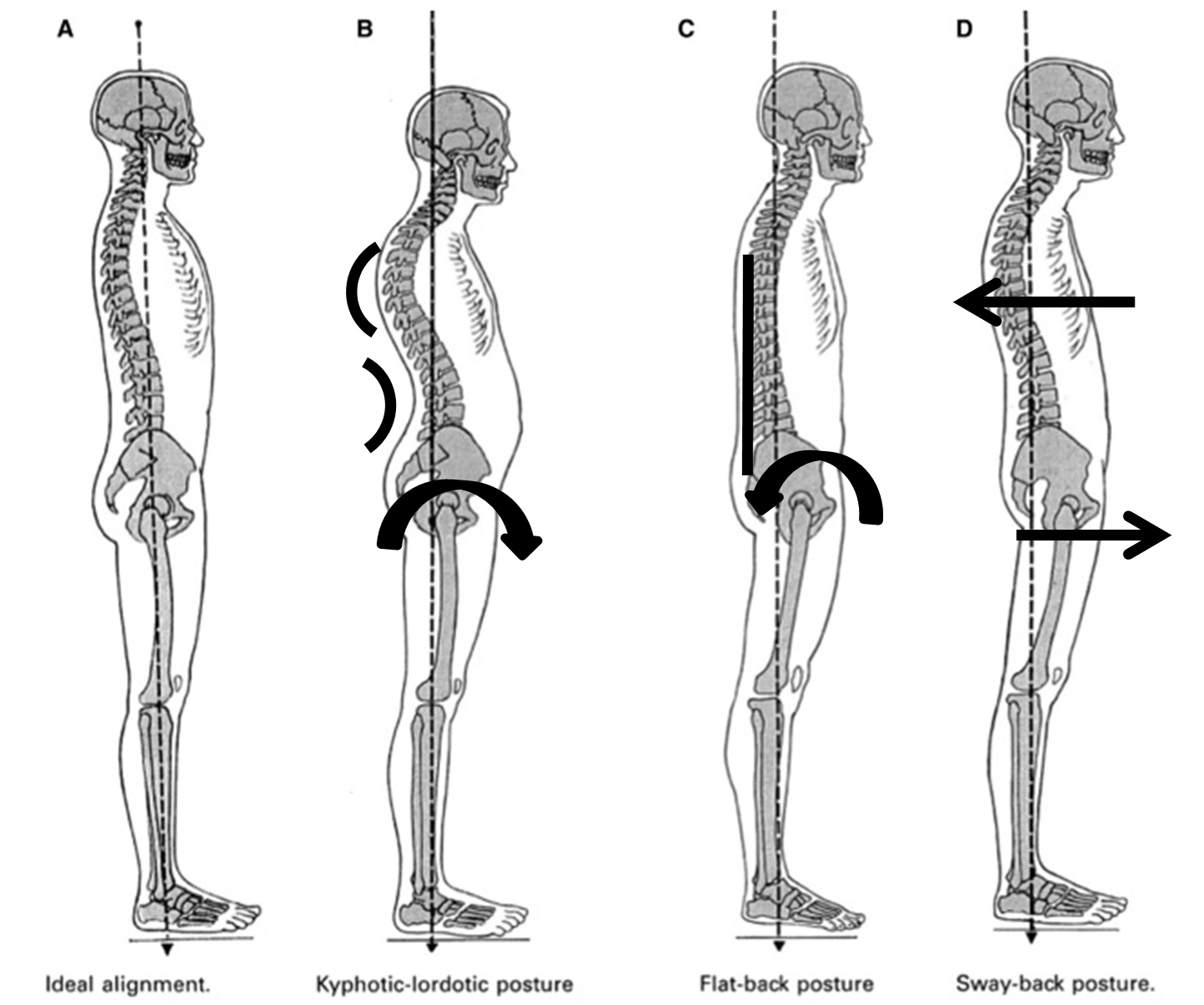 Posture Types How To Improve Posture Your Pilates Physio Your