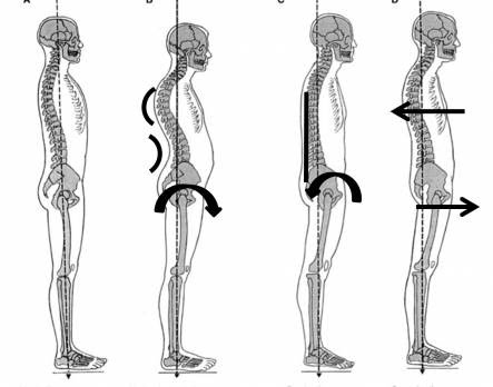 How your posture can affect your spine